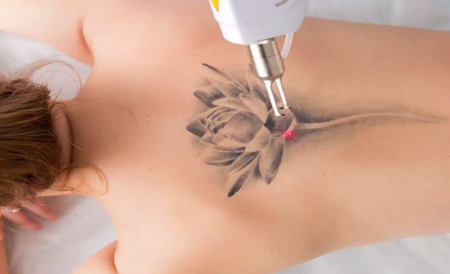 6 Signs it's Time to Consider Laser Tattoo Removal